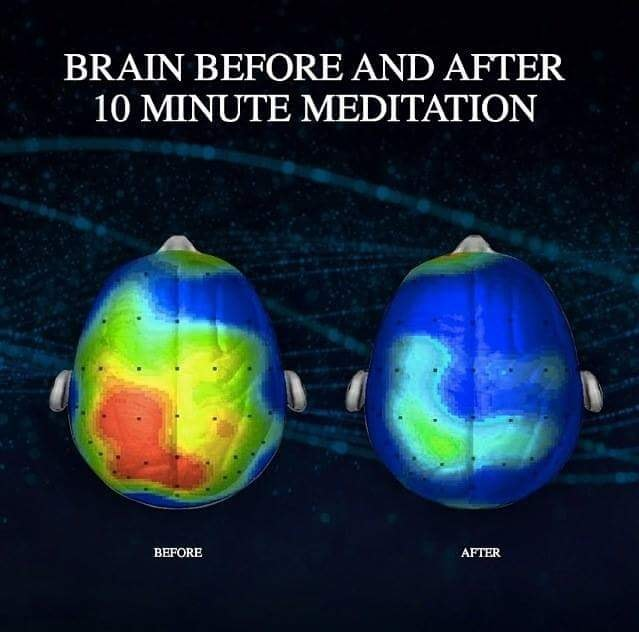 brain before and after meditation